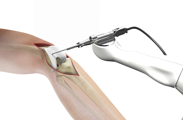 How Robotics is Changing Joint Replacement