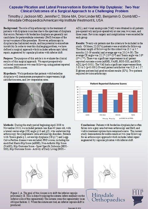 Research & Publications | Hip Arthroscopy Protocol | Proximal