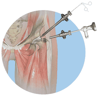 Hip Arthroscopy in American Hip Institute & Orthopedic Specialists