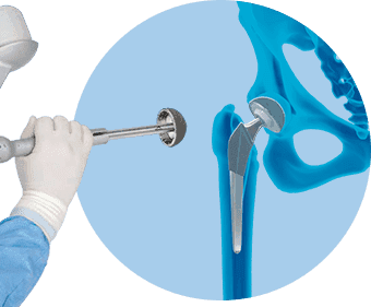 Robotic Hip Replacement in American Hip Institute
