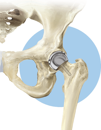 Hip Resurfacing in American Hip Institute