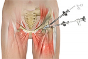 A Promising Future for Patients Undergoing Primary, Revision Hip Arthroscopies